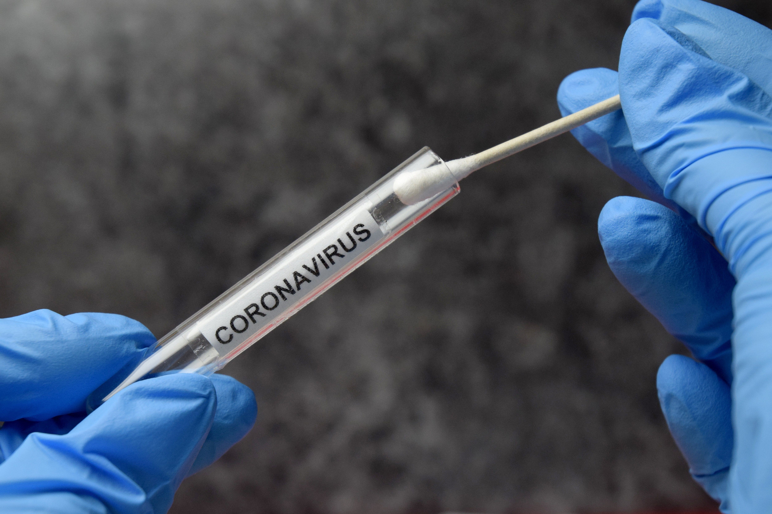 Army in Stuttgart to restart limited coronavirus testing for people with no symptoms
