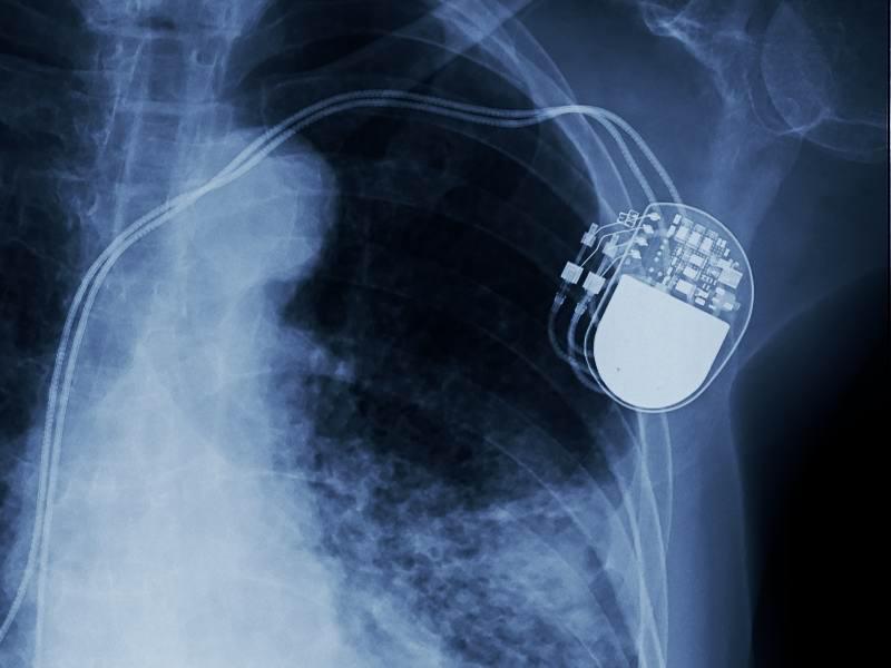 750,000 Medtronic Defibrillators Vulnerable to Hacking